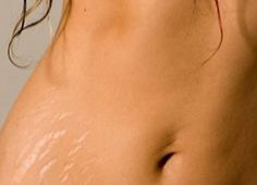 Easiest way to prevent those Unwanted Stretch Marks