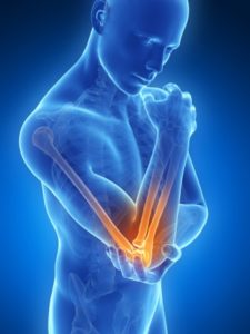 ElitePT-Elbow-Injury-Rehab